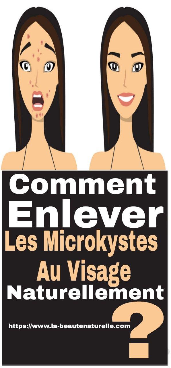 d2b77a2ea99 Comment enlever les microkystes au visage naturellement