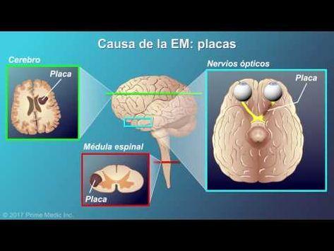 ¿Qué es la esclerosis múltiple? Conozca sus causas, síntomas y manejo - YouTube