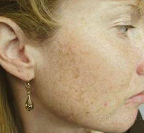 brown spots on face pictures #Treatingskindarkspots