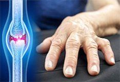 Rheumatoid Arthritis: Practice Essentials, Background, Pathophysiology