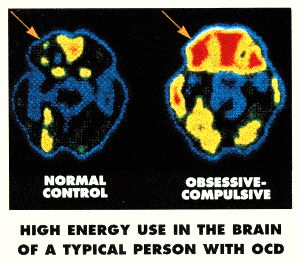 Rapid Effects Of Intensive Therapy Seen Patients With Obsessive-compulsive disorder (OCD) | intellectual vanities... about close to everything