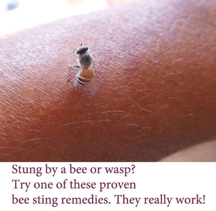 Home Remedies Care — Read about bee sting treatment and how to control...