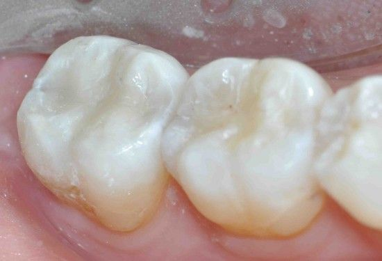 UT Health Science Center Researcher Awarded One Of Six Major Grants From NIH To Build Next Generation Dental Composite