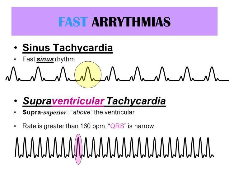 FAST ARRYTHMIAS Sinus Tachycardia Fast sinus rhythm Supraventricular Tachycardia Supra- superior : above the ventricular