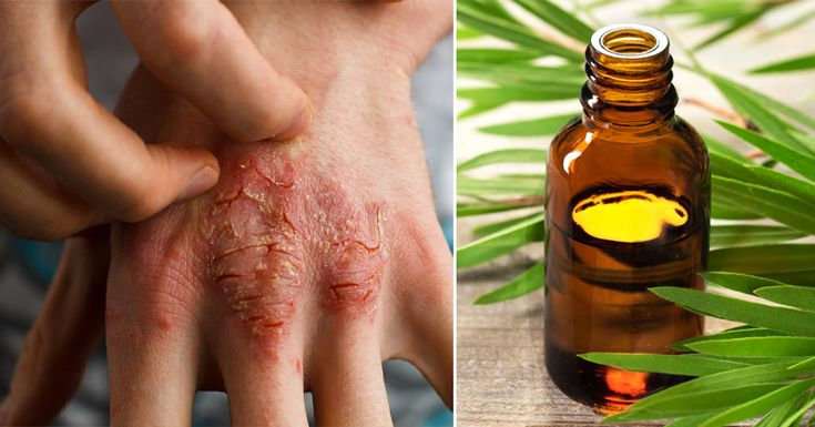 The tea tree is native to Australia, and the tea tree oil, also known as melaleuca, is extracted with the help of steam distillation of its leaves and twigs. This oil is packed with numerous healing compounds, and it offers a number of health benefits. Some of them are: Eczema and psoriasis Melaleuca contains anti-inflammatory …