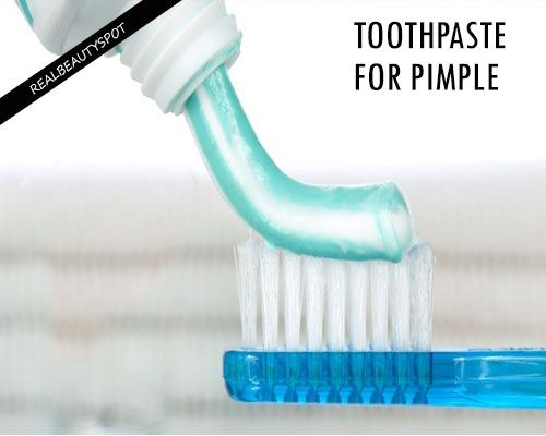TOOTHPASTE FOR PIMPLE AND SCARS