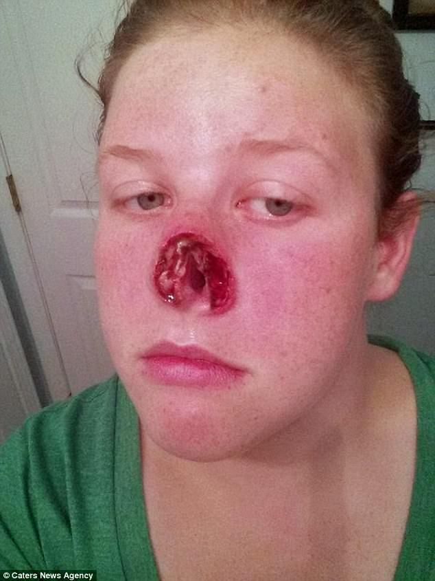 How a simple pimple became deadly skin cancer. A courageous woman's story.  Doctors gave her just a 20 per cent chance of survival when they discovered the aggressive form of skin cancer had spread from the small pimple on her nose (pictured after surgery to remove most of her nose to stop the spread of the disease) #cancer #health #courage #life