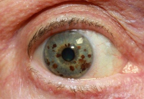 Choroidal nevus is typically a pigmented tumor of the ...