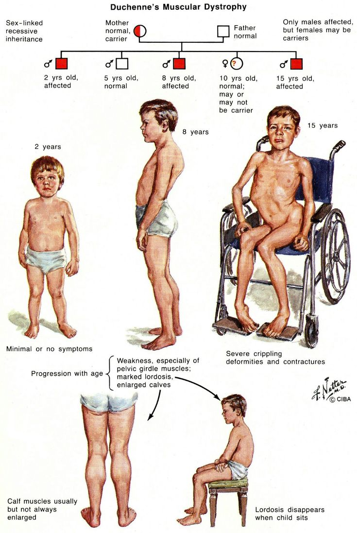 Duchenne muscular dystrophies (X-linked pattern) where dystrophies is absent mos…