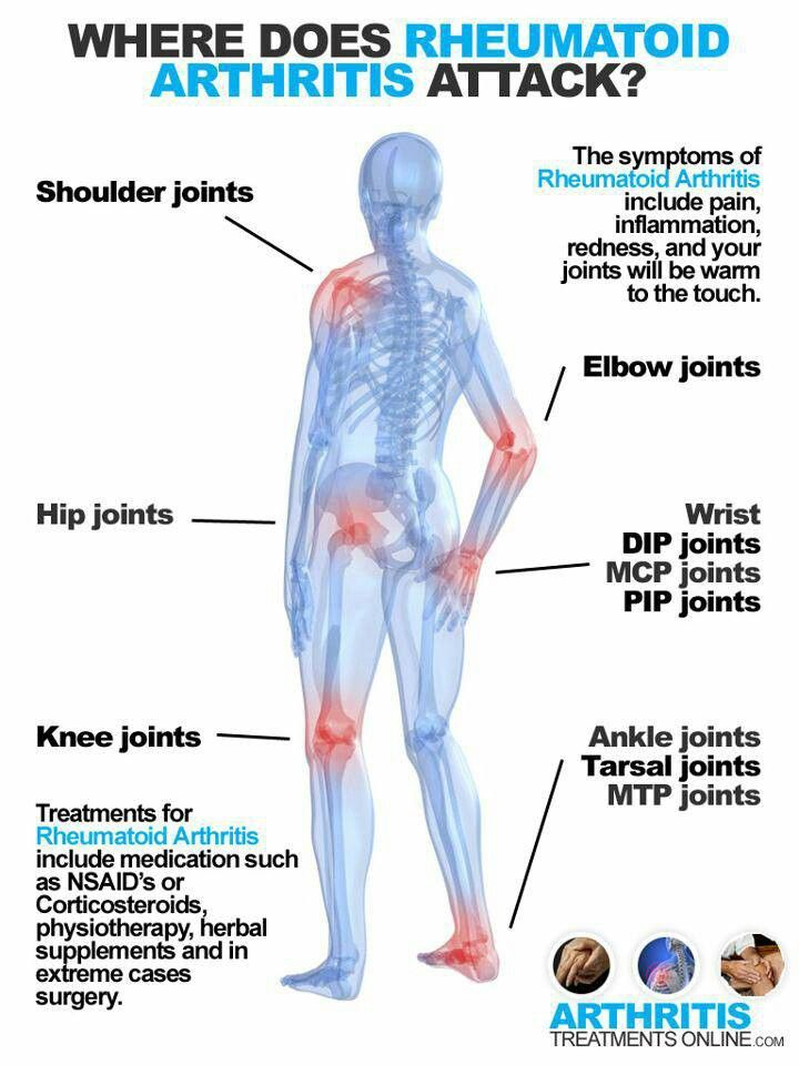 Rheumatoid Arthritis And Fingernail Pain Symptoms Si Tobi Project Thesis