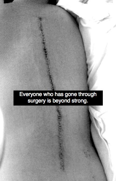 Spinal fusions for scoliosis are more severe. I think they're stronger than I am!