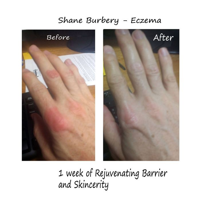 Before & After Eczema - Skincerity