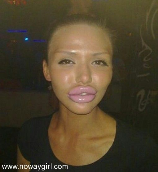 Bilderesultat for wtf silikon lips