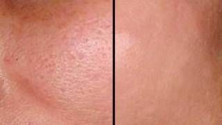 HOW TO: MAKE PORES DISAPPEAR IN SECONDS - GOOD FOR ACNE PRONE SKIN!, via YouTube.