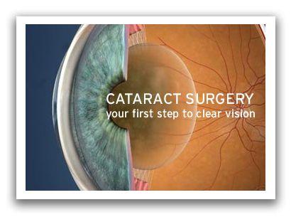 Cataracts is formed when eye's lens become harder and vision starts to cloud, eye sight become blurs making eye insufficient to see bright colors.Cataracts are treated by surgery to remove the cloudy lens in your eye.