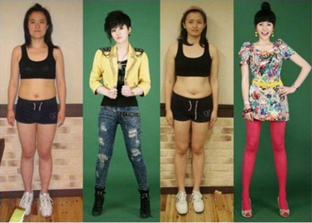 O antes e o depois da cirurgia plástica coreana