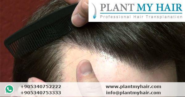 زراعة الشعر في تركيا في مركز بلانت ماي هير لزراعة الشعر في تركيا بأحدث الأجهزة،…