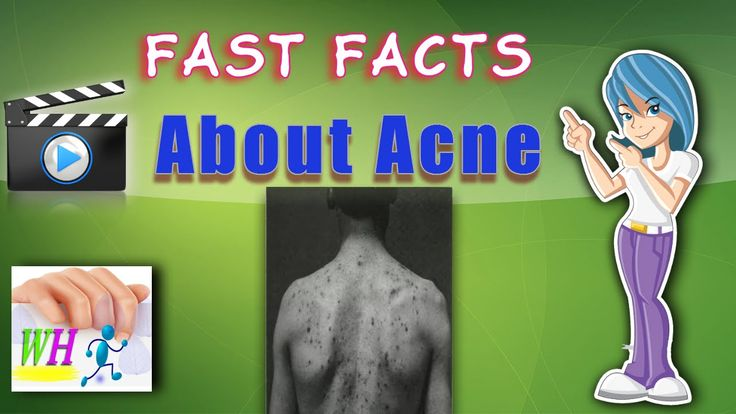Fast facts about acne,home remedies for acne, how to remove acne scars
