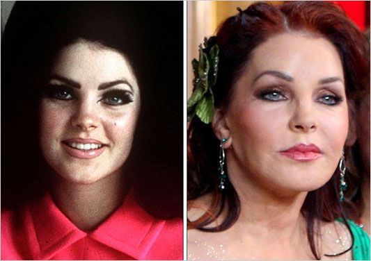 Celebrity Plastic Surgery What Not To Do She Does