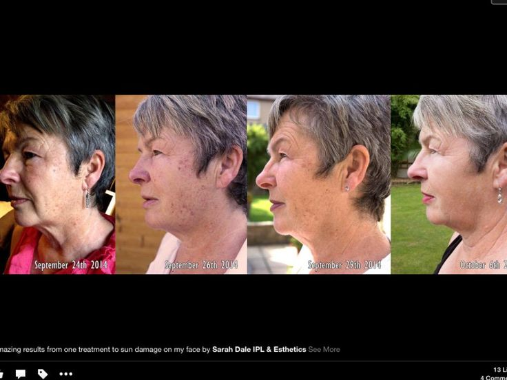 "Sarah Dale on Twitter: ""Before and after 1 #ellipse #ipl #rejuvination @apothecar @Dorset_Hour #permanantHairRemoval #redveins #DorsetHour http://t.co/Lr6hEFYtq2"""