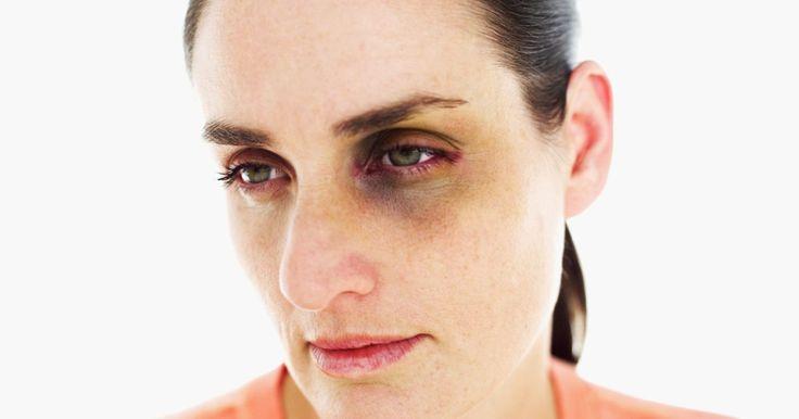 Como tratar um edema ocular proveniente de uma lesão na testa. Uma lesão no lobo frontal (testa) pode ser potencialmente fatal se não for tratada de maneira adequada. Um hematoma subdural (edema interior) em torno de um ou ambos os olhos pode indicar mais inchaço sob a pele, e possivelmente se estenderá até o lobo frontal do cérebro. O tratamento de um edema ocular proveniente de uma lesão na testa deve ...