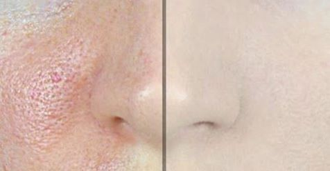 http://bestgirl.me/how-to-make-pores-disappear-with-only-1-ingredient-2/