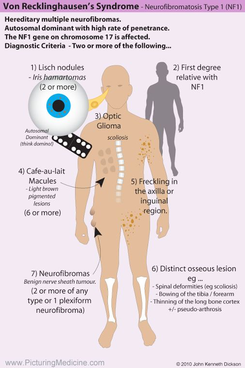 Neurofibromatosis (NF1) aka Von Recklinghausen Syndrome. This diagram summaries…                                                                                                                                                                                 Más