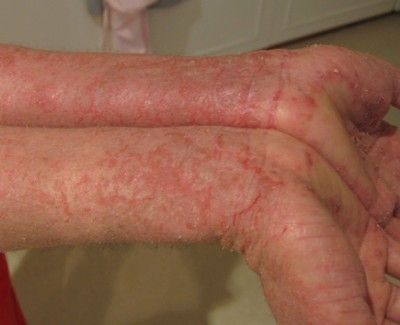 rodan and fields before and after pictures - Soothe regimen will help with Eczema
