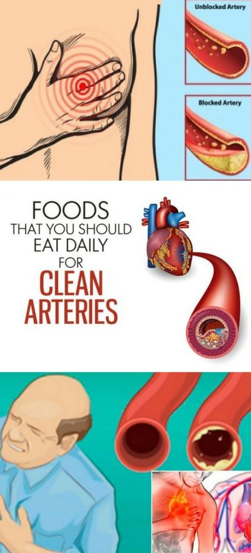Signs That You Have Clogged Arteries And How to Unclog Them Naturally