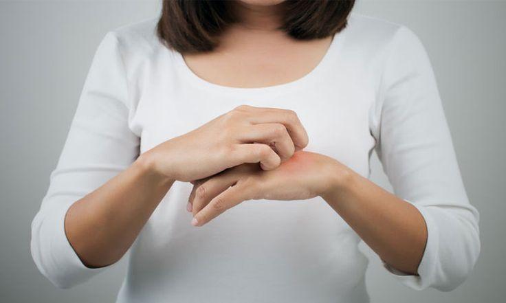 Conheça a dermatite atópica, também chamada de eczema atópico, uma doença que provoca irritação e intensa coceira da pele.