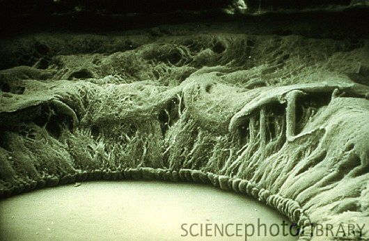 Scanning Electron Micrograph of normal human eye showing anterior of iris and pupil