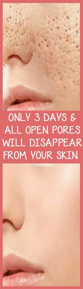 3 Tage und alle offenen Poren verschwinden aus Ihrem …