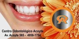 Blanqueamiento Dental Laser Centro Odontológico Acoyte Av.Acoyte 565 - Buenos Aires https://www.youtube.com/watch?v=2e0sPqB2o9c