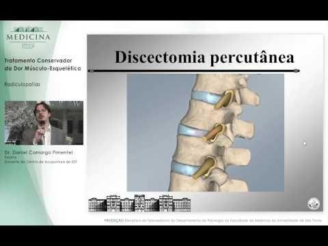 """Entendendo a """"dor ciática"""" (Radiculopatia Lombar) - YouTube"""