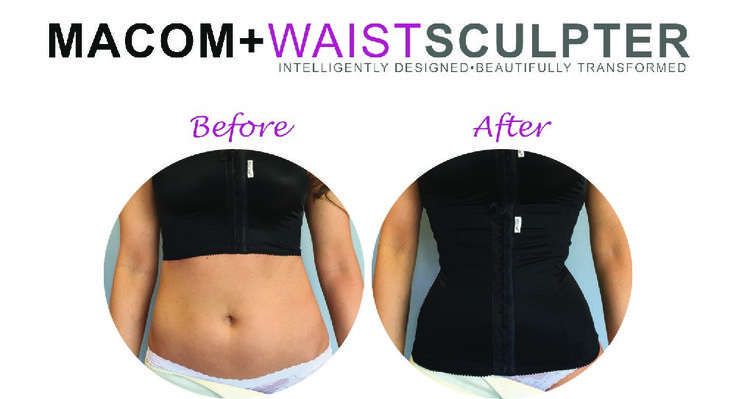 Does waist sculpting work? Have a look at this amazing before and after photo. Read more about the magic here: https://www.macom-medical.com/products/waist-sculpter/85?c=51