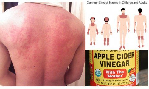 5 Ways To Use Apple Cider Vinegar To HealEczema Apple cider vinegar has been used for centuries as a home remedy for
