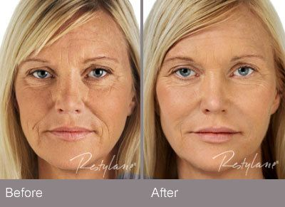 Image result for restylane before and after photos