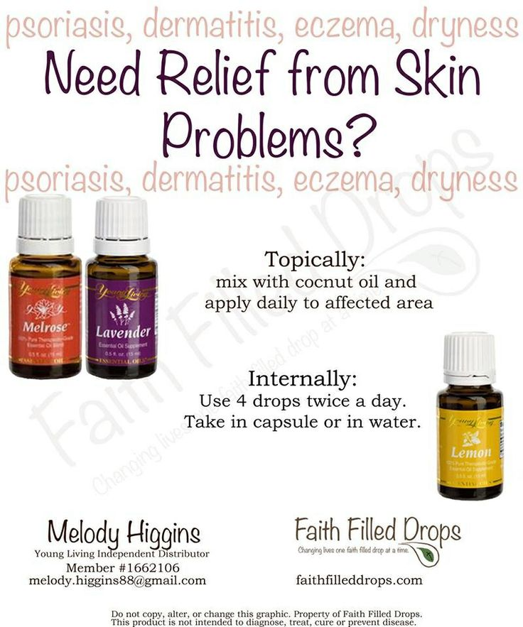 17 Best Images About Essential Oils On Pinterest Sprays