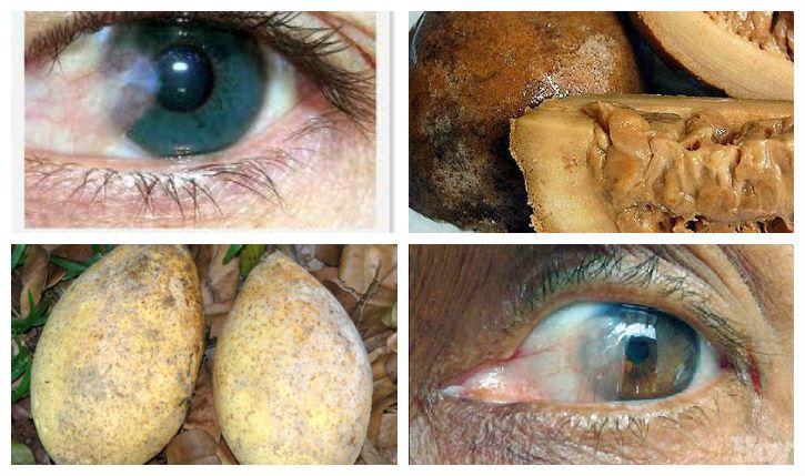 La uña o palmera es una enfermedad ocular muy conocida y muy común, se caracteriza por el crecimiento anormal de la conjuntiva que se inflama por diversas razones, a continuación te daremos un remedio casero 100% efectivo para la eliminar la uña o palmera.
