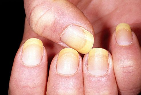 Yellow fingernails on a woman's hand can be an indication a fungal infection. As the infection worsens, the nail bed may retract, and nails may thicken and crumble. In rare cases. In rare case Yellow nails can indicate a more serious condition such as severe thyroid disease, lung disease, diabetes or psoriasis