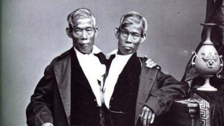 Fraţii Bunker primii siamezi din lume, au avut 21 de copii