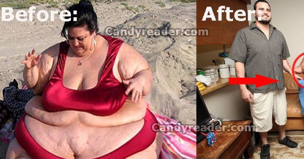 This Obese Woman Loses 238 lbs. After Splitting From Her Feeder Boyfriend