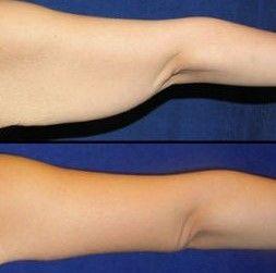 La flacidez de la piel de los brazos es un muy frecuente y se trata de un problema meramente estético.Los pacientes con exceso de grasa en los brazos pueden decidir someterse a una liposucción junto con otros procedimientos estéticos, para lograr resultados más drásticos.El lifting de brazos, es un procedimiento quirúrgico dirigido a mejorar la forma y tersura de los brazos generalmente para elevar el tejido descolgado del miembro superior.Este procedimiento quirúrgico corrige la flacidez…