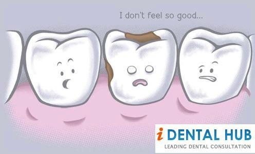Dental caries is one of the most prevalent dental problem. The symptoms of dental caries may include sensitivity, food particles impaction, brownish black discoloration of tooth. Dental caries can be easily taken care of by keeping good oral hygiene.