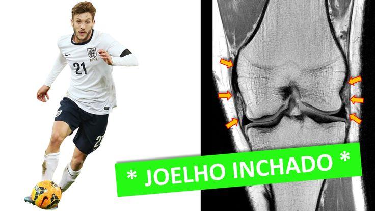 www.cirurgiadejoelho.med.br / O DR. ADRIANO KARPSTEIN, médico ortopedista especialista em Cirurgia de Joelho e Medicina Esportiva, explica sobre o JOELHO INCHADO. #joelho #cirurgiadejoelho