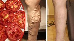 Tenía mis piernas llenas de varices y un doctor me dijo que usará el tomate de esta forma para desaparecerlas