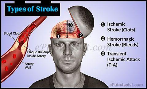 Types of Stroke: Ischemic Stroke, Hemorrhagic Stroke, TIA Read: http://www.epainassist.com/brain/types-of-stroke
