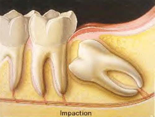 Oral Surgery/Removal of wisdom teeth