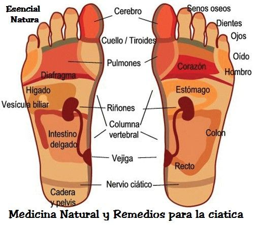 Medicina Natural y Remedios para la Ciatica: