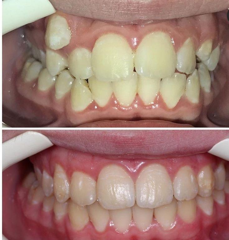 Dental braces dental braces dental braces